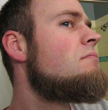 Chinstrap Beard Without Mustache 10