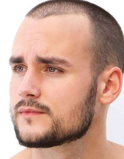 patchy beard styles 2018
